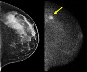 ** HOLD FOR RELEASE AT 6 P.M., EDT **These undated images, provided by the Mayo Clinic in Minnesota, shows a standard mammogram, left, and molecular breast imaging (MBI) from a study performed on a 45-year-old patient in the clinic's screening of women with dense breasts. The mammogram was interpreted as being negative while the MBI image shows a cancer indicated by the arrow. (AP Photo/The Mayo Clinic)